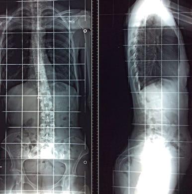Caso de escoliosis 2014