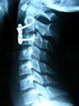 luxaciones-vertebrales-3