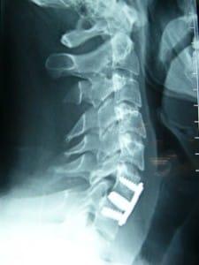 Radiografía postoperatoria lateral de la reducción quirúrgica de la luxación con Artrodesis C6-C7