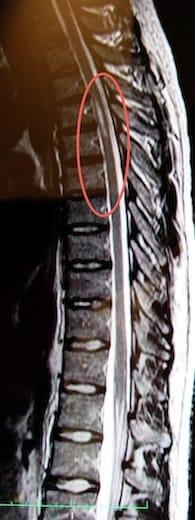 Syringomyelia in 2010