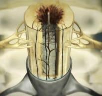 Enfermedad del Filum -  isquemia_traccion_filum_terminale