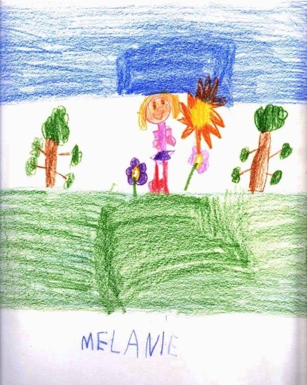 melanie_Paciente_ICSEB_Chiari1