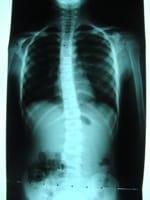 Escoliosis-2009_17253