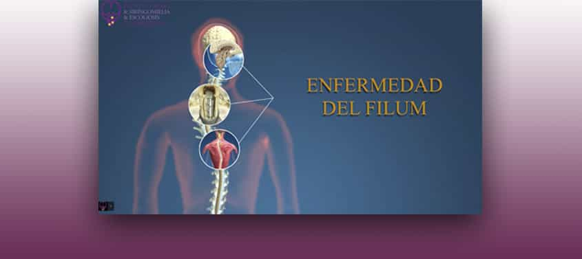 The Filum Disease Institut Chiari De Barcelona …vertebra, but its continuation, the filum terminale, can be traced through the sacrum to the first coccygeal vertebra. the filum disease institut chiari de