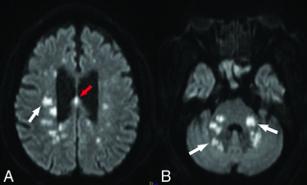 FIG 1. Lesiones isquémicas difusas de la sustancia blanca profunda. La difusión por RM (se basa en la detección en el vivo del movimiento de moléculas de agua) en un paciente con COVID-19, muestra numerosas lesiones isquémicas focales dentro de la sustancia blanca profunda hemisférica (A, flecha blanca), el cuerpo calloso (A, flecha roja), los ganglios basales, los pedúnculos cerebelosos medios y los hemisferios cerebelosos (B, flechas blancas)2
